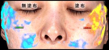 頬の体積量(ハリ・滑らかさ)